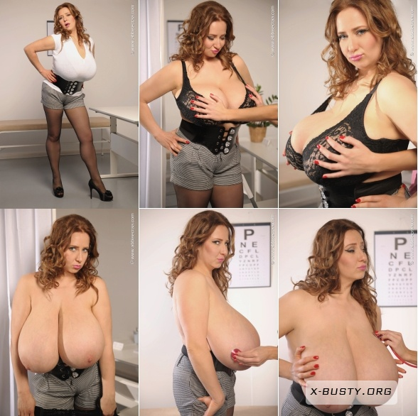 Images Of Abbi Secraa Talks About Breasts Reduction S And Videos